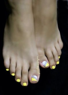 Yellow animal print gelly toes