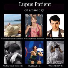 Exact same for Rheumatoid Arthritis! And almost every day feels like a flare day