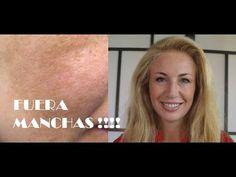 M Quitar manchas de la cara + Blanquear la piel 8 tratamientos naturales