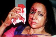 JAIHIND: Hema Malini discharged from hospital, flies home t...