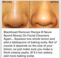 DIY Blackhead remover - after you mix it, put some on your nose and let it dry. Then rinse it off.