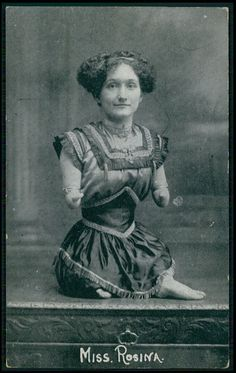 Circus Freak MISS ROSINA Armless Legless woman Lady original old 1910s postcard