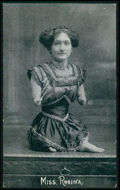 Circus Freak MISS ROSINA Armless Legless woman Lady original old 1910s postcard