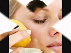 COMO ELIMINAR MANCHA DE ACNE O EPINILLAS - http://solucionparaelacne.org/blog/como-eliminar-mancha-de-acne-o-epinillas/