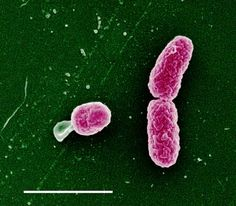 Haemophilus influenzae (first living microbe to have its genome sequenced).
