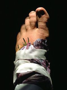 Poultice for Swelling // The Medicine Woman's Roots