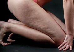 Έχετε χαλαρό και κρεμασμένο δέρμα; Συσφίξτε το με φυσικό τρόπο! - Daddy-Cool.gr