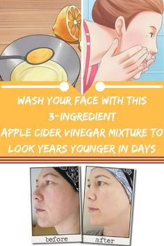 Wash Your Face With This 3-Ingredient Apple Cider Vinegar Mixture to Look YEARS Younger in Days