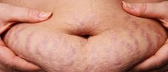 1 Weird Trick For Stretch Marks And Loose Belly Skin
