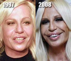 donatella versace before after 2 OMG WTF Did You Do to Your Face?: Celebrity Plastic Surgery Gone Wrong Botched Plastic Surgery, Bad Plastic Surgeries, Plastic Surgery Gone Wrong, Donatella Versace Before, Donatella Versace Plastic Surgery, Celebrities Before And After, Celebrities Then And Now, Forehead Lift, Brow Lift