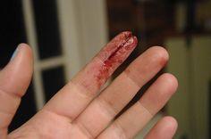 Sliced Finger by SometimesAliceFX