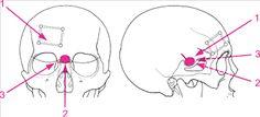"""Képtalálat a következőre: """"chiasma opticum meningeoma"""""""