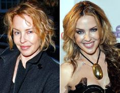 Celebrities without makeup: Kylie Minogue Power Of Makeup, Beauty Makeup, Celebs Without Makeup, Star Wars, Trend Fashion, Airbrush Makeup, Kylie Minogue, Naturally Beautiful, Real Beauty