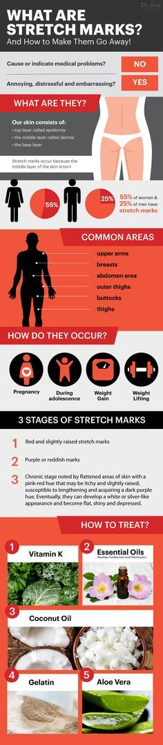 How to Get Rid of Stretch Marks - Dr. Axe