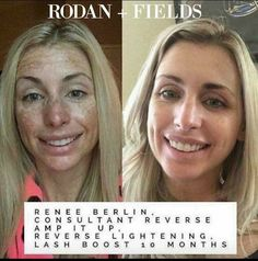 Awesome results!! R+F