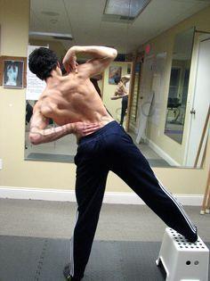 Power Schroth scoliosis exercise