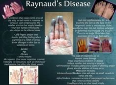 Raynoud's Phenomenon. (There are varying degrees of this illness. Not all people experience this disease as pronounced as the illustrated pictures.)