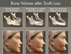 Dentaltown - Bone volume after tooth loss can be prevented by replacing missing teeth with dental implants.