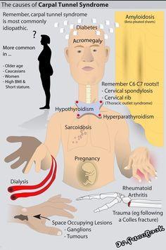 Carpel tunnel syndrome Carpel Tunnel Syndrome, Carpal Tunnel Exercises, Carpal Tunnel Relief, Cervical Spondylosis, Pharmacology Nursing, Massage Benefits, Naturopathy, Dialysis, Light Therapy