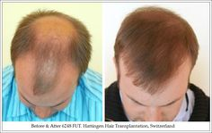 #HairTransplant Results And Reviews Hair Transplant Results, Guys, Sons, Boys
