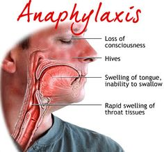 Anaphylactic shock Anaphylaxis symptoms