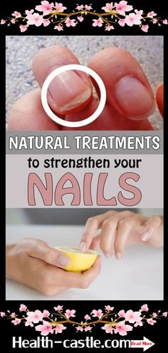 Natural treatments to strengthen your nails Hands are like a business card, so you need to know how to take care for them. Don't pay attention only for the skin, but for your nails also. Here are 6 treatments that will help you get healthy and beautiful Diy Nails Soak, Nail Soak, Health Tips For Women, Health And Beauty, Health Advice, Health Care, Beauty Skin, Natural Nails, Natural Skin