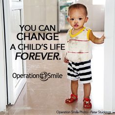 For as little as $240, you can help provide a cleft lip or cleft palate surgery. A surgery that can change a child's life forever... Cleft Lip, Charitable Giving, Smile Photo, Simple Words, Good Cause, Child Life, My Passion, Priorities, Surgery