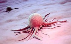 Wow!! We really are killing ourselves...Big Hospital Finally telling the truth about Cancer, Johns Hopkins