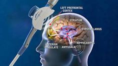 Neuronetics, Transcranial Magnetic Stimulation information, clinical results,patient results, how it works