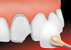 Want to improve your smile instantly? Opt for dental veneers to get beautiful smile you always want. Get more details here about dental veneers. The Dental Hub is a trusted dental clinic in Gurgaon where you can get smile makeover treatment from experienced cosmetic dentists. #DentalVeneers #SmileMakeover #InstantSmile #TheDentalHub