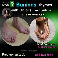 Don't cry over your bunions Call NYC FOOTCARE 888-nyc-foot / nycfootcare.com 212.385.2400 #NYC #pedicure #highheels #l4l #toes #makeup #manhattan #bronx #brooklyn #queens #fashion #fashionista #heels...