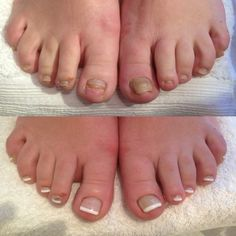 Before And After Summer Gel Toes