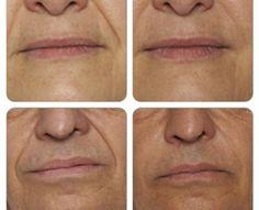 Anti Aging, Detox, Hair Beauty, Healing, Cosmetics, Eyes, Face, Fitness, Drink