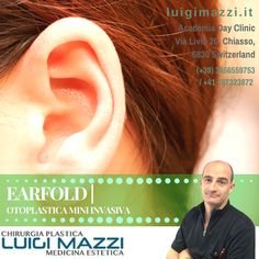 ╚ Dr. Luigi Mazzi ╝  » Earfold | Otoplastica Mini invasiva - Chirurgia Plastica ed Medicina Estetica Verona e Chiasso   👂👂👂 EarFold™ è ideale per le persone che soffrono di orecchie a sventola o sporgenti, anche asimmetriche, mono o bi-lateralmente♦♦♦ Visita: http://luigimazzi.it/earfold/ ♦♦♦ @luigi.mazzi.chirurgiaplastica  #luigimazzi #mazzi #chirurgoplastico #cosmeticmedicine #cosmetic #aesthetic #estetica #medicina #medicine #verona #earfold #otoplastica #otoplasty #miniinvasiva