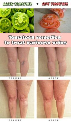 WE HEART IT: Tomatoes remedies to treat varicose veins