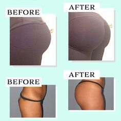 Do you want a bigger bum without working for it? Our Butt-Lift Shaping Patch gives you an instant lifting with anti-sagging effect, as well as to improve other Fitness Workout For Women, Fitness Tips, Waist Trainer Before And After, Orange Peel Skin, Perky Butt, Anti Cellulite, Cellulite Remedies, Skin Elasticity, Workout Exercises