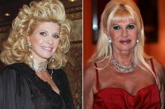before after lips Ivana Trump Plastic Surgery Before and After photos showing lip fillers, nose job, breast and chin surgery Plastic Surgery Photos, Celebrity Plastic Surgery, Kim Basinger, Marie Osmond, Christie Brinkley Plastic Surgery, Lip Fillers, Celebs, Celebrities, Kisses