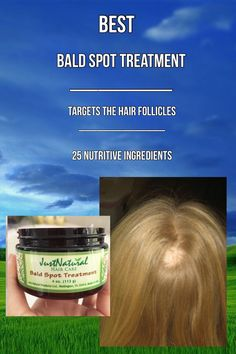 """I am using this scalp spot cream to grow my hair in this one """"bald"""" spot I have. My hair is very thick but I noticed one small section by my edges that's is empty of hair. I think it's because I've been putting a lot gel in my hair and leaving it. I use i"""