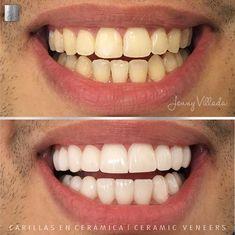 Hermosas transformaciones que devuelven la sonrisa a nuestros pacientes, realizamos carillas en cerámica en color blanco sutil. Logrando un armonioso resultado acorde a su anatomía facial, mejorando la forma, el color y tamaño en los dientes del paciente. Dental, Facial, Color, Shape, Rice, White People, Faces, Facial Treatment, Facial Care