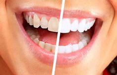 A veces notamos que nuestra dentadura ya no está tan linda como nos guste y va perdiendo es resplandor que deja el blanco del esmalte de los dientes. ¿Cómo evitar que los dientes se pongan amarillos? ¿Cuales remedios hay para blanquearlos en casa? En los tiempos de esta época nos gusta gas