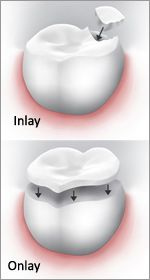 Restore your Smile with Dental Inlays and Dental Onlays | Riverside, CA