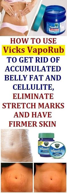 How To Use Vicks Vaporub To Get Rid Of Accumulated Belly Fat And Cellulite, Eliminate Stretch Marks And Have Firmer Skin. Home Remedies For Cellulite And Stretch Marks Herbal Remedies, Health Remedies, Home Remedies, Natural Remedies, Holistic Remedies, Cough Remedies, Vicks Vaporub, Fitness Workouts, Workout Routines