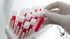 Группа крови. Rh-фактор   Малышева Вера Александровна