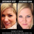 """Transformation Tuesday✨  Truly aging backwards for Tara!! Here's what she had to say.... """"The picture on the left showed up in my Timehop today! I always thought my skin looked pretty good. I took very good care of it and was doing everything right! I was a spa director, after all, and had access to all the best skincare out there. When I first saw this picture this morning I thought """"ugh, yuck!"""" And when I compared it side by side to this picture I took yesterday it hit me how much my skin…"""