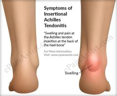 Signs and Symptoms of Insertional Achilles Tendonitis Insertional Achilles Tendonitis, Tendonitis Causes, Achilles Tendon Support, Achilles Stretches, Achilles Pain, Natural Remedies For Arthritis, Foot Pain Relief, Natural Pain Relief, Health