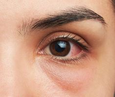 Sure Signs You Have COVID Now, According to a Doctor - Provided by Eat This, Not That! Itchy Eyelids, Types Of Rashes, Eye Supplements, Eye Structure, Dry Eye Drops, Eye Infections, Skin Rash, Healing Herbs, Pink Eyes