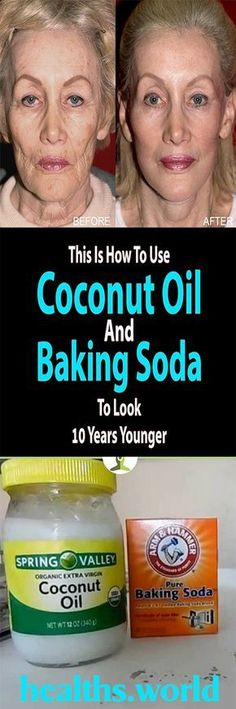 COCONUT OIL & BAKING SODA HELP YOU LOOK 10 YEARS YOUNGER – Healths World Natural Treatments, Skin Treatments, Natural Remedies, Health And Wellness, Health And Beauty, Health Care, Beauty Skin, Baking With Coconut Oil, Baking Soda Face
