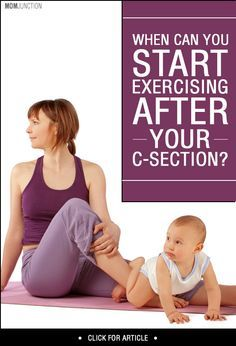 When Can You Start Exercising After Your C-Section? : Getting back to exercise after c section delivery can be a little tricky. Read on to know when it is safe for you to start exercising again. Post Baby Workout, Post Pregnancy Workout, Pregnancy Fitness, Pregnancy Health, Baby Health, Pregnancy Tips, Butt Workout, After C Section Workout, Post C Section