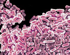 Bacterias perxudiciais (salmonela)