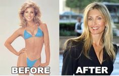 heather thomas plastic surgery